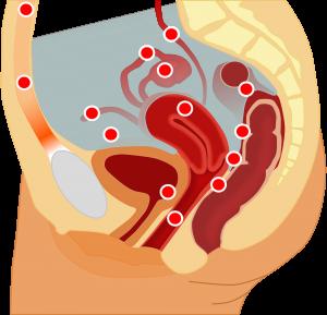 arišča 300x289 - Splošno o endometriozi